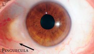discover-iridology-images16-e13875264256791-300x172