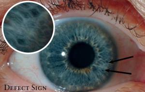 discover-iridology-images4-e13875268552981-300x190